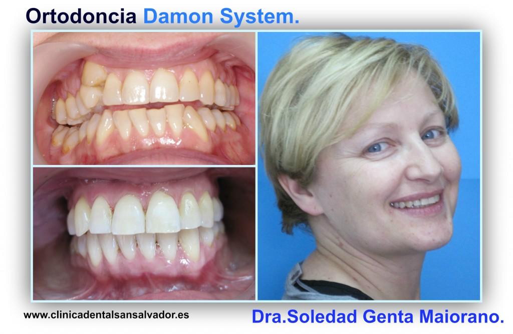 damon system ortodoncia dra soledad genta maiorano vigo clinica dental san salvador.